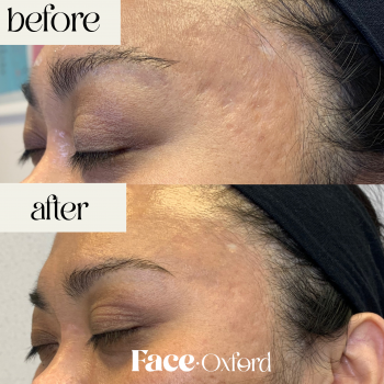 Acne scarring after 1st treatment